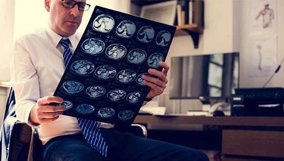 Urazy-głowy-i-urazy-mózgu-odszkodowania
